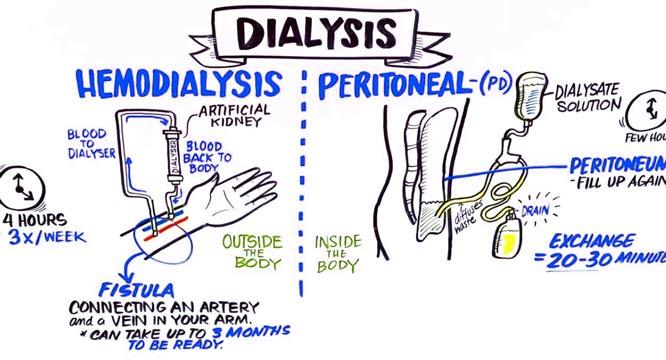 hemodialysis-peritoneal