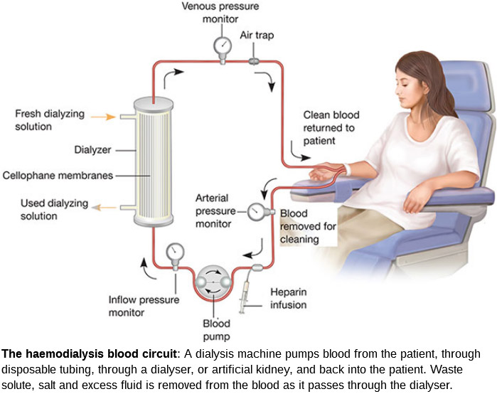 Hemodialysis-procedure