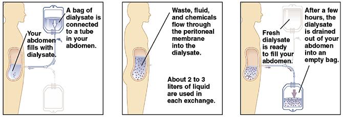peritoneal-dialysis-3