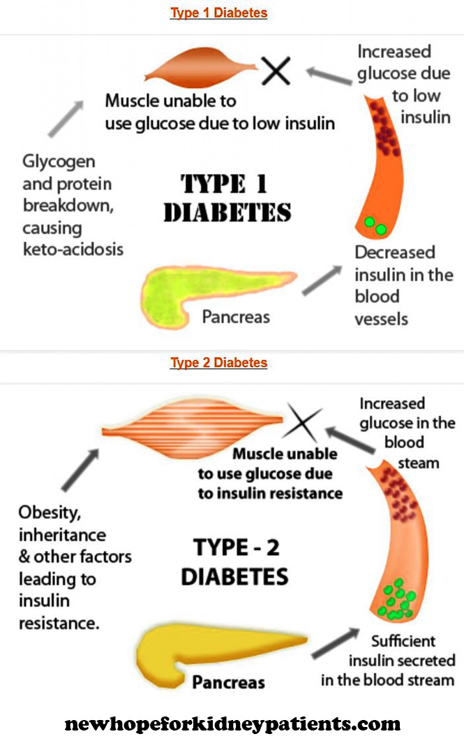 Image Result For Type  Diabetes Insulin Dependent