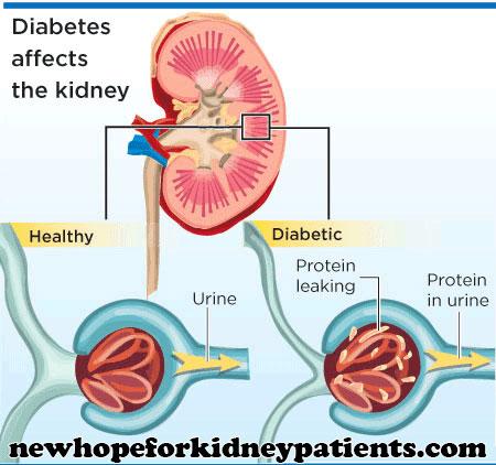diabetes kidney