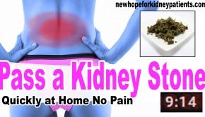 how to kidney stones